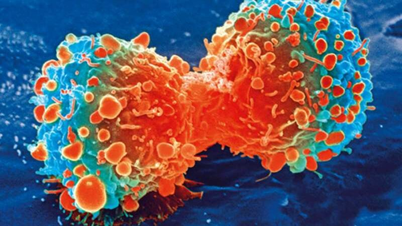 More evidence that cellular 'death by iron' could be promising avenue of cancer treatment